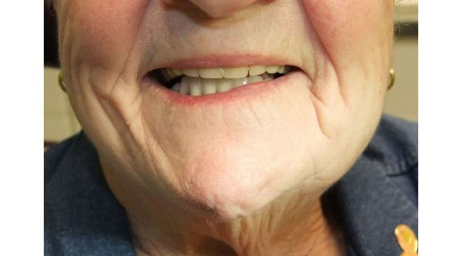 Before & After Treatment at YYC Denture 9