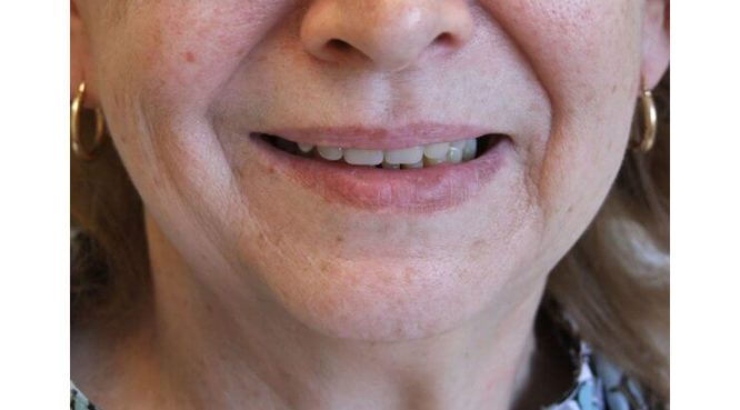 Before & After Treatment at YYC Denture 8