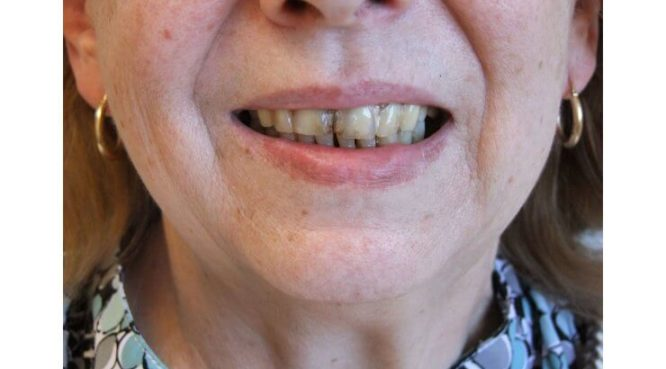 Before & After Treatment at YYC Denture 7