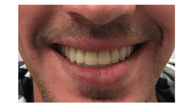 Before & After Treatment at YYC Denture 6