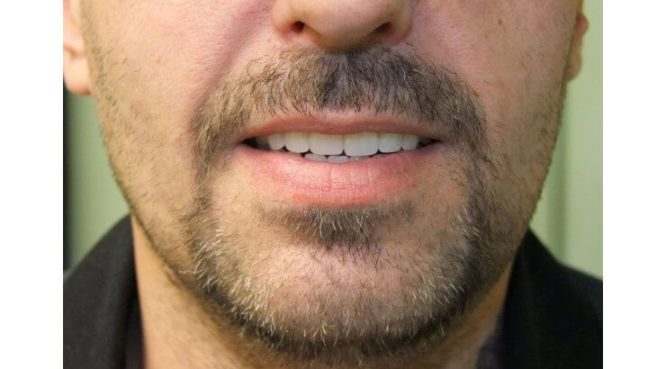 Before & After Treatment at YYC Denture 4