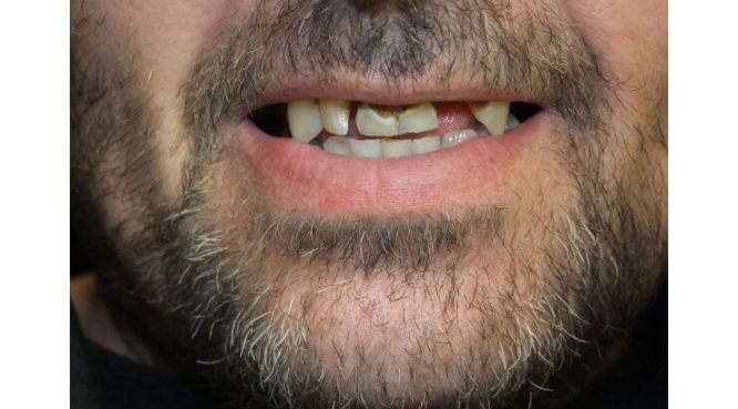 Before & After Treatment at YYC Denture 3