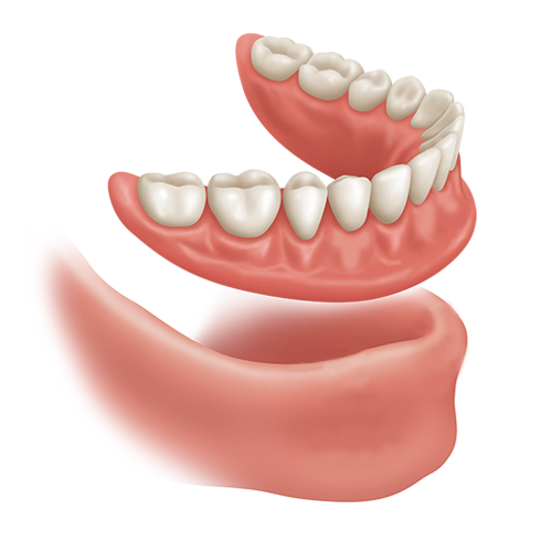 denture solution for missing teeth 1