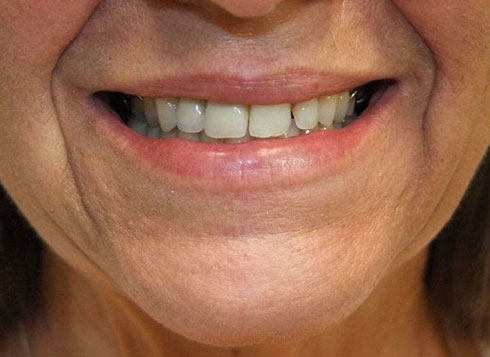 Before & After Treatment at YYC Denture 2