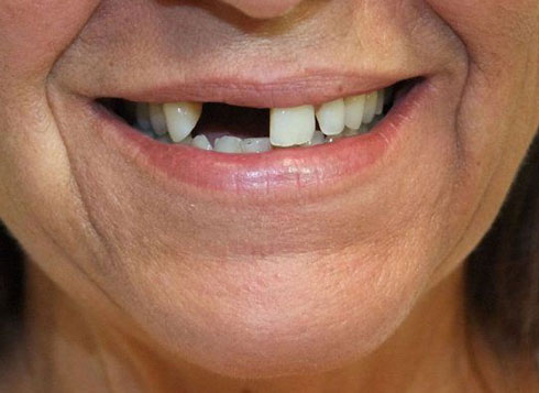 Before & After Treatment at YYC Denture 1