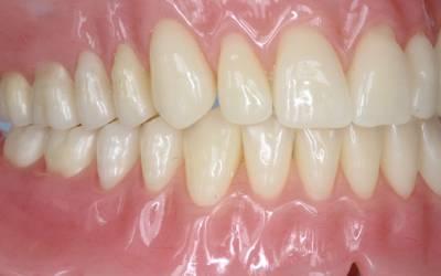 YYC Dentures Cases