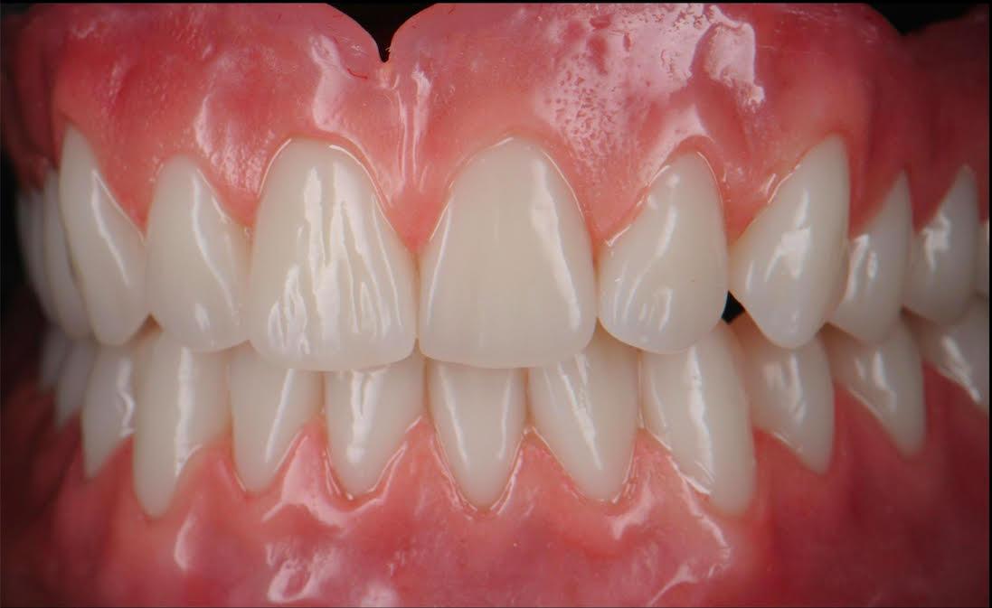 calgary denture clinic affordable dentures premium complete dentures