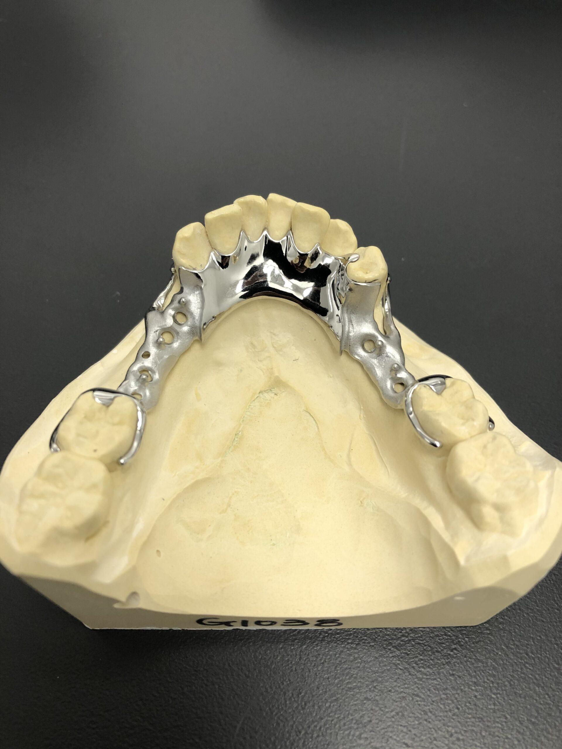 calgary dentures yyc denture clinic calgary